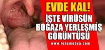"""EVDE KAL VE DİREN!"""